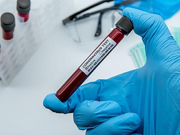 test sierologici covid19 torino